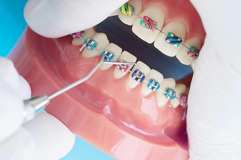 aparelho-odontologico-fixo-em-bh-preço-baixo