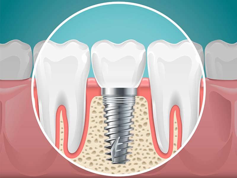 implantes-odontologicos-em-bh-melhor-preço