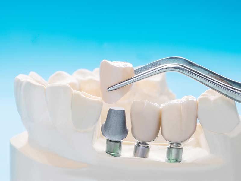 melhor-lugar-para-fazer-implantes-odontologico-bh
