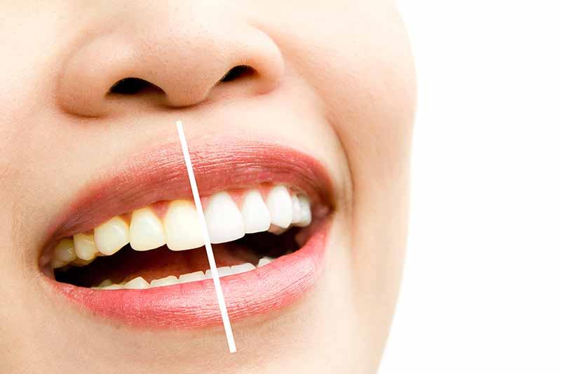 o-melhor-preco-para-clareamento-dental-em-bh