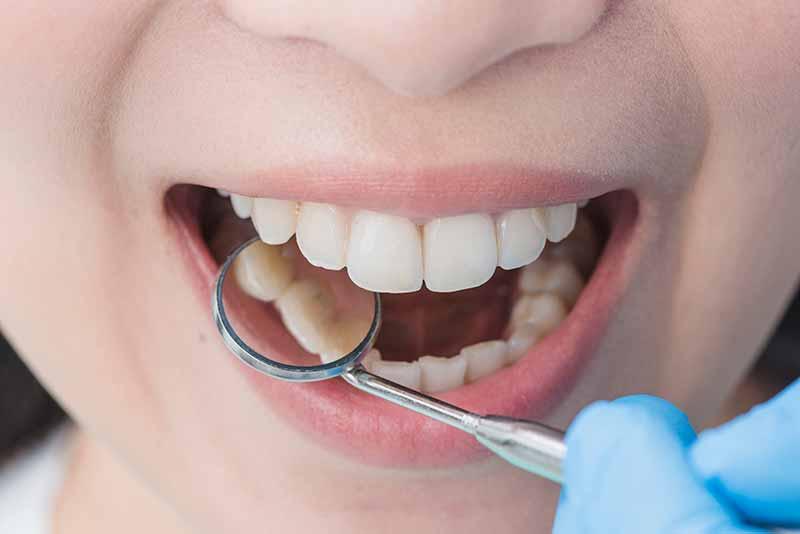 tratamento-de-dentes-com-melhor-preço-em-bh-e-regiao-metropolitana